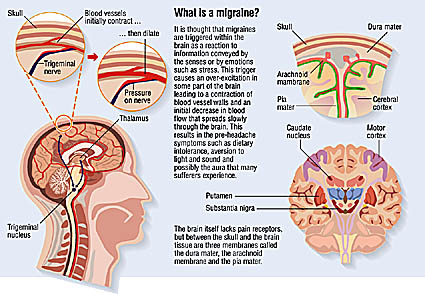 medical illustrations and anatomical diagrams, at ... migraine headache diagram