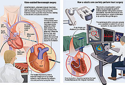 robotic surgery medical illustrations